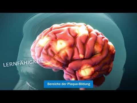 Die Alzheimer-Krankheit verstehen