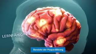 Die Alzheimer-Krankheit verstehen (Understanding Alzheimer's Disease)