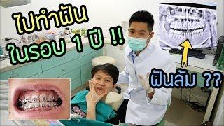 ไปเปลี่ยนเหล็กครั้งแรกในรอบ 1 ปี | ปากเน่า ฟันล้ม ต้องถอนฟัน ??