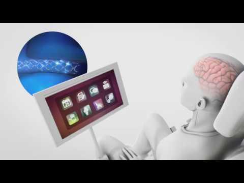 Stentrode: una revolución en las interfaces cerebro computador