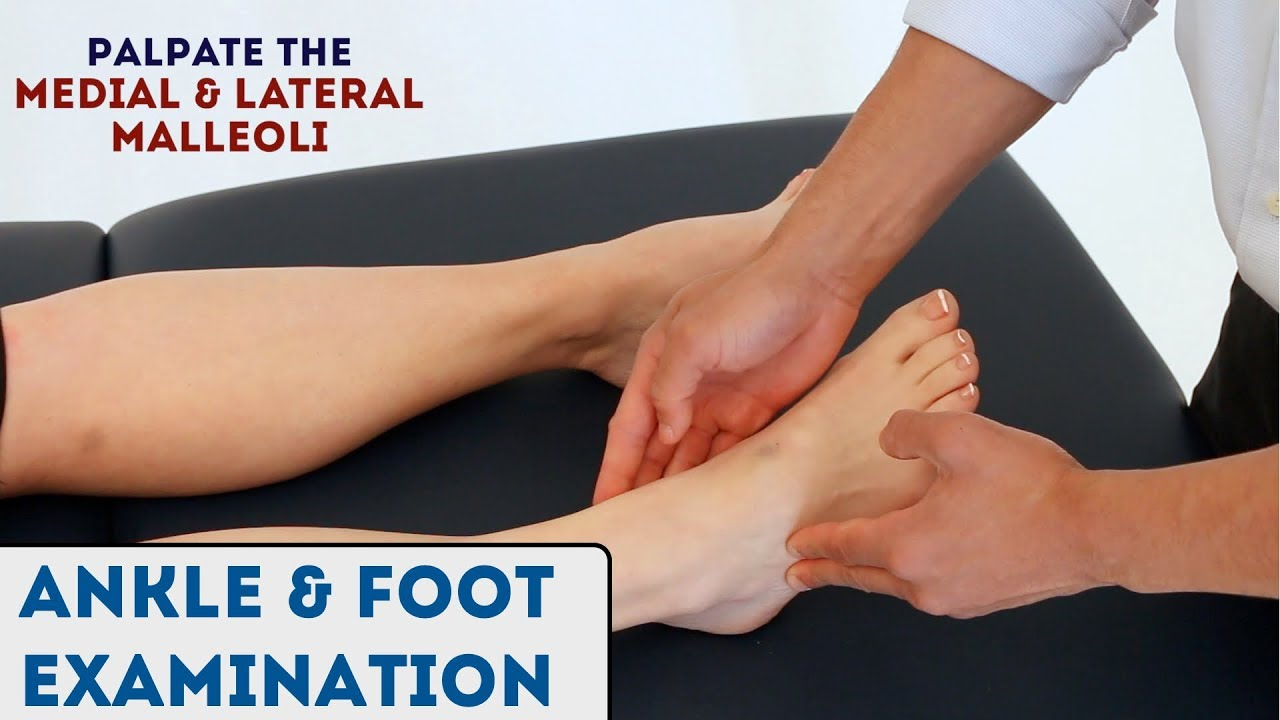 Ankle And Foot Examination - Osce Guide