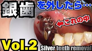銀歯を外したら…😱Vol.2 Remove silver teeth去除銀牙之後