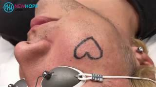 Laser Tattoo Removal - Removing Heart tattoo off face - Newhope Laser Skin Care - Orange County