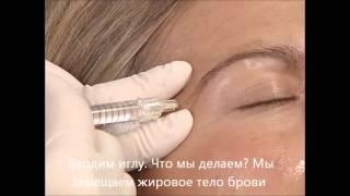 Подъем латеральной части брови с помощью препарата гиалуроновой кислоты Restylane