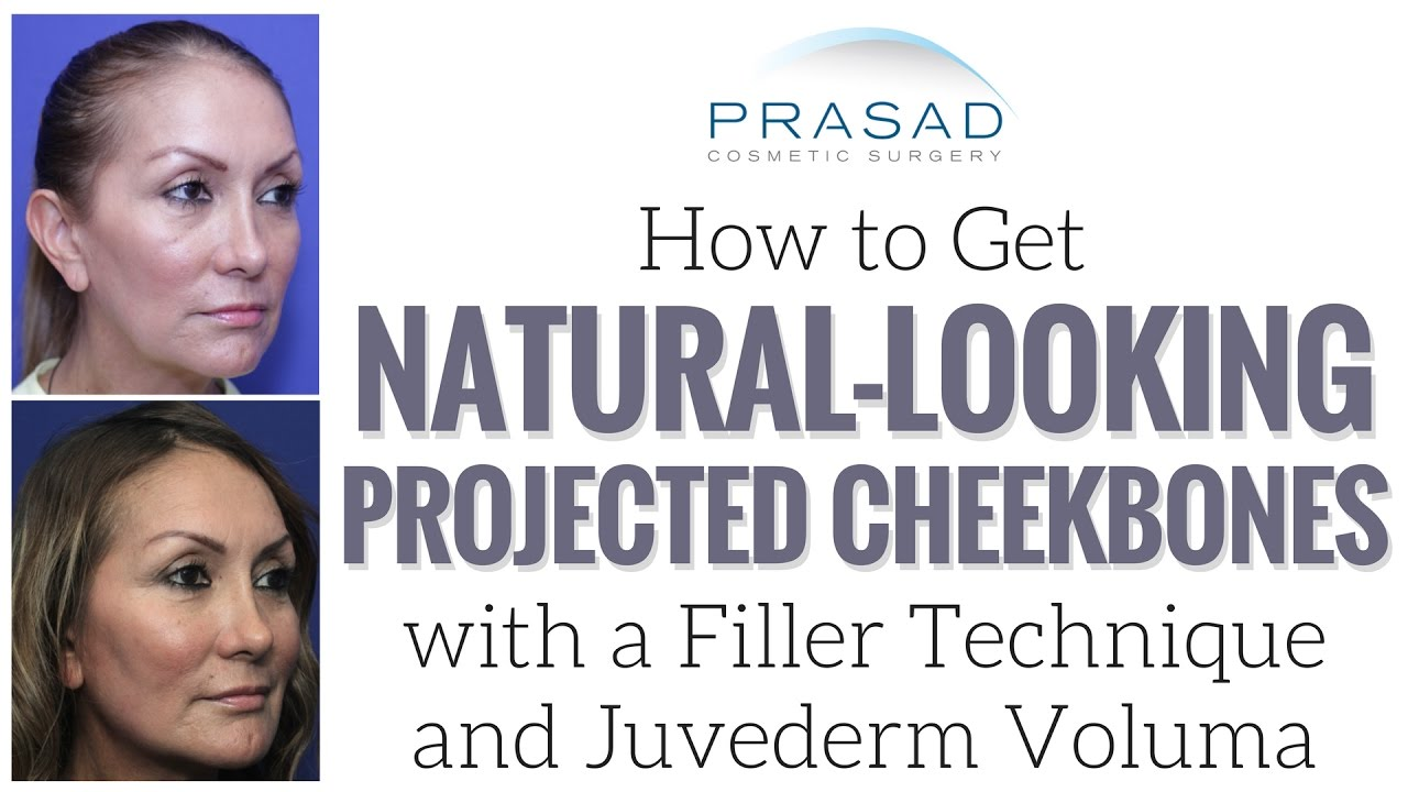 How to Get Projected, Natural-Looking Cheekbones with Deep Placement ...