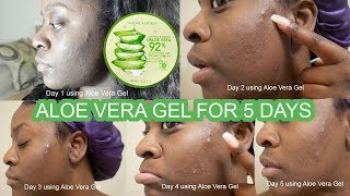 I TRIED NATURE REPUBLIC'S ALOE VERA GEL FOR 5 DAYS & THIS IS WHAT HAPPENED... l