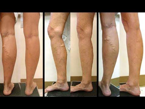 Causas de varices entre las piernas