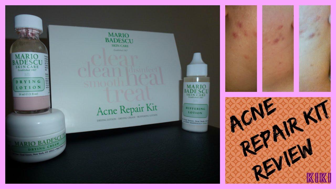 La malattia di acne come trattare