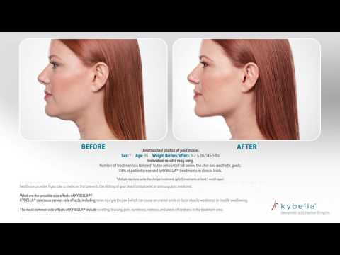 Kybella Before & After Photo Stream 062416