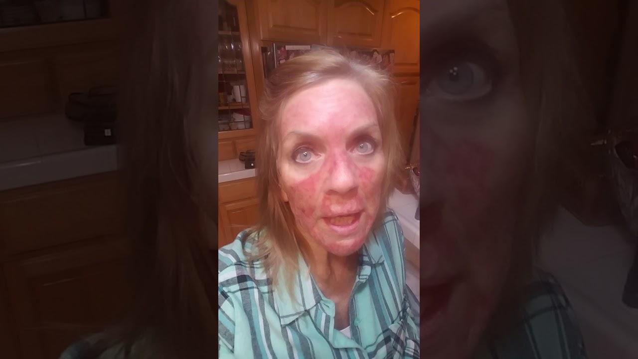 5-FU Fluorouracil Topical treatment Day 23 by Tina Aranas