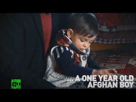 Meet Donald Trump… 1yo Afghan boy