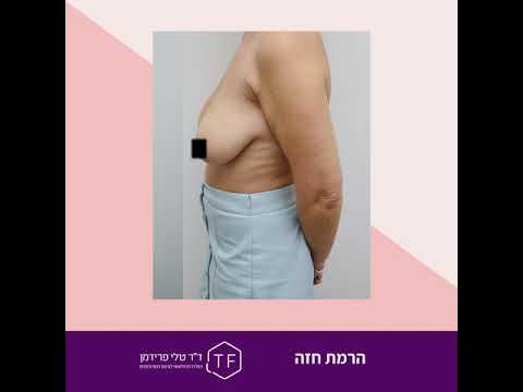 """ניתוח הרמת חזה - לפני ואחרי   ד""""ר טלי פרידמן - המרכז הבינלאומי לעיצוב הגוף והפנים"""