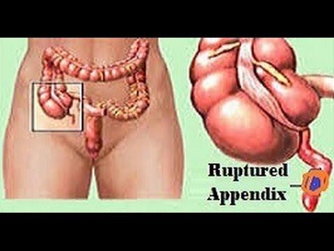laparoscopic surgery for ruptured appendix - youtube, Cephalic Vein