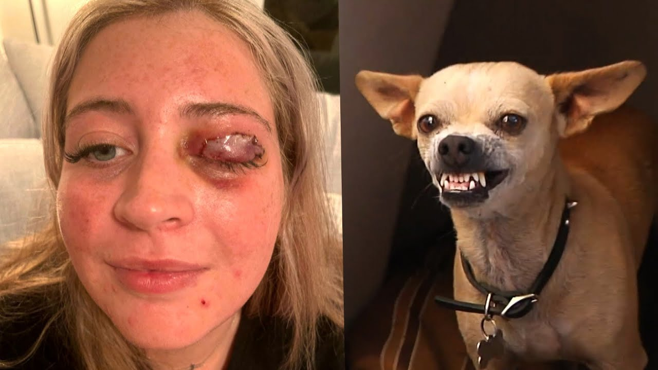 Woman's Eyelid Ripped Off by Stylist's Chihuahua