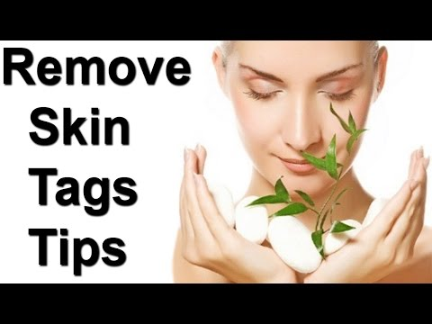 how to get rid of skin tags with lemon