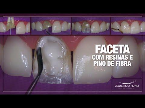 Faceta Direta com Resinas e Pino de Fibra | Leonardo Muniz