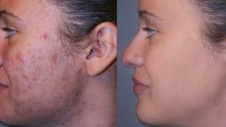 La causa del surgimiento del acné de los granos