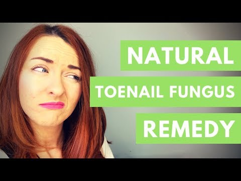 Herbal Toenail Fungus Cure | Get Beautiful Nails!