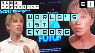 PETER 2.0: World's first full cyborg, Dr Peter Scott-Morgan - Episode #1