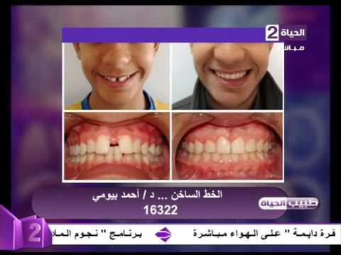 طبيب الحياة بالصور قبل وبعد تركيب التقويم د أحمد بيومي