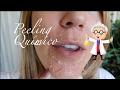 BELLEZA: Cómo se hace y resultado Peeling Químico / MARTA IBRAHIM