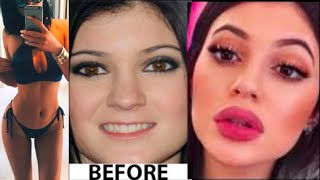 Kylie Jenner Weight Loss 2015 + Face transformation