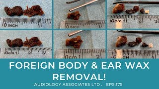 FOREIGN BODY & EAR WAX REMOVAL - EP175