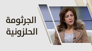 د. رندا شاهين - الجرثومة الحلزونية