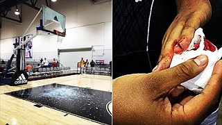 High School Star Shatters Backboard And Slices Hand With Huge Dunk | The Fumble