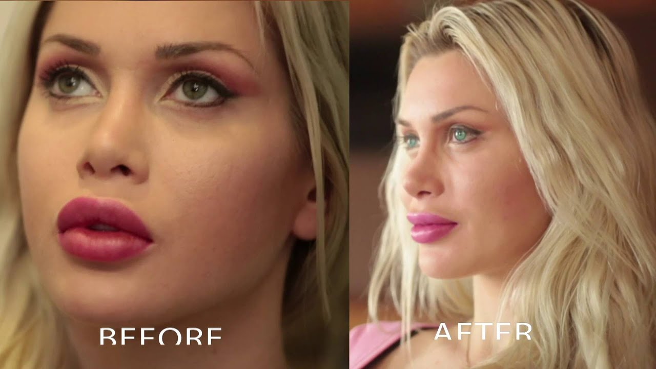 Cosmetic Surgery Model Pixee Fox Gets Permanent Green