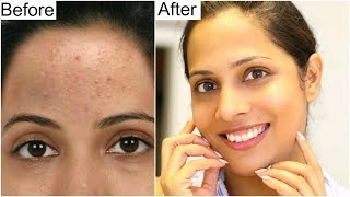 Best SKINCARE ROUTINE for Crystal Clear Skin | Shruti Arjun Anand