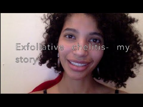 Exfoliative cheilitis lip condition and products to ...