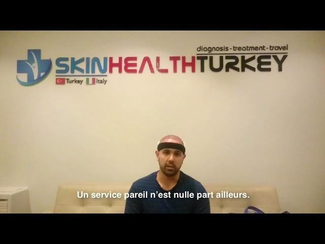Greffe de cheveux Turquie - Témoignage de B. Garnica - Dr. Oyku Celen - Skin Health Turkey