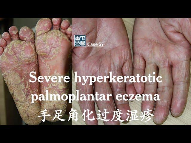 Severe hyperkeratotic palmoplantar eczema (eczema tyloticum) 掌跖角化过度型湿疹