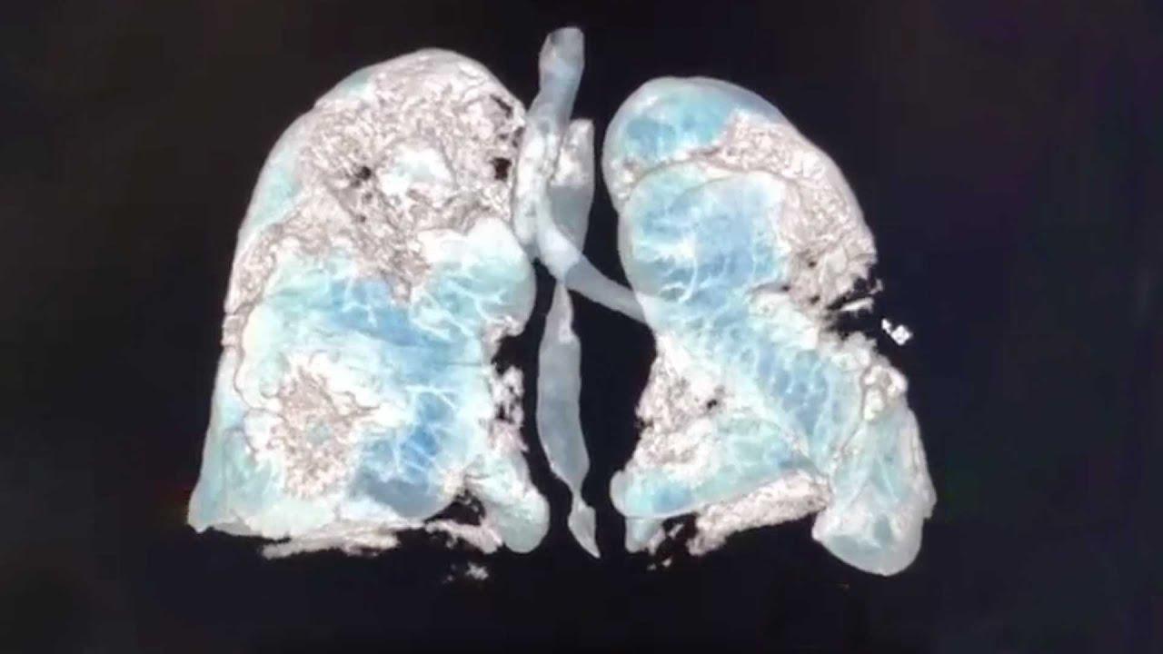 Así luce el pulmón de un enfermo de Covid