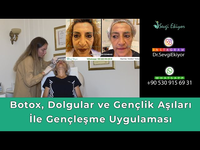 Botox, Dolgular ve Gençlik Aşıları İle Gençleşme Uygulaması