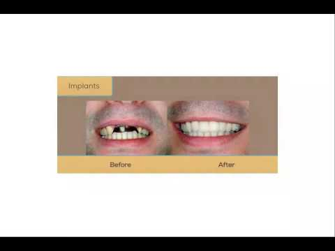 Dentist Reviews In Claremont Nh 3 Stone Dental 1876 443 8792
