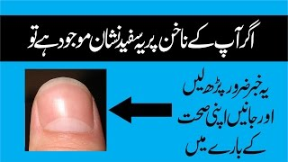 What Causes White Spots On Nails - Thumb Sign