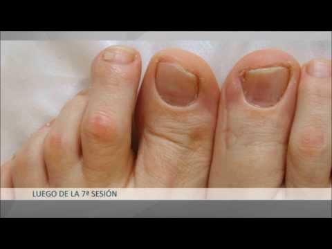 Onicomicosis - Relato de paciente y tratamiento