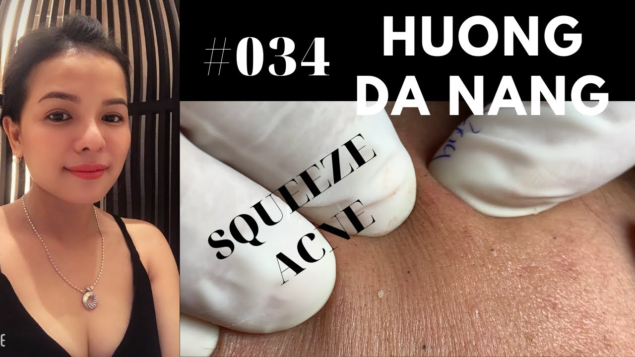 #034 | SQUEEZE ACNE for Hằng | Nặn mụn cho bé Hằng |Acne treatment Hương Đà Nẵng Official