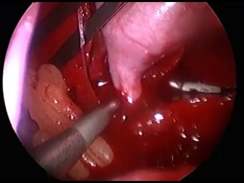 Surgical Video Laparoscopic Gall Bladder Removal Youtube