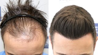 FUE Hair Transplant (4275 Grafts NW III-IV - DPA) By Dr Juan Couto - FUEXPERT CLINIC - Madrid, Spain
