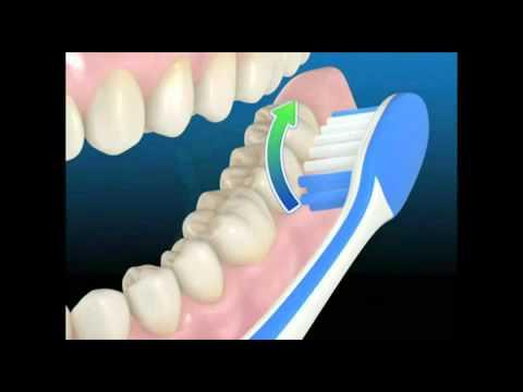 tecnica de cepillado dental barrido