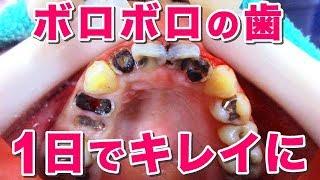 【1日でここまで】重度虫歯治療Tooth Decay  1day treatment twenties woman[cleaning][health and wellness](重度蛀牙治療)
