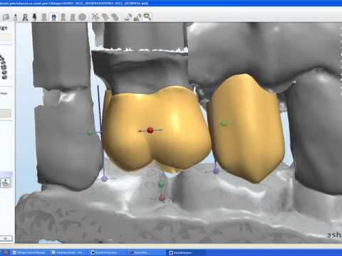 ROE Dental Laboratory Crown and Abutment Design