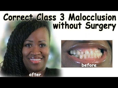 Correct Class 3 Malocclusion without Surgery - Bergen County NJ Dentist