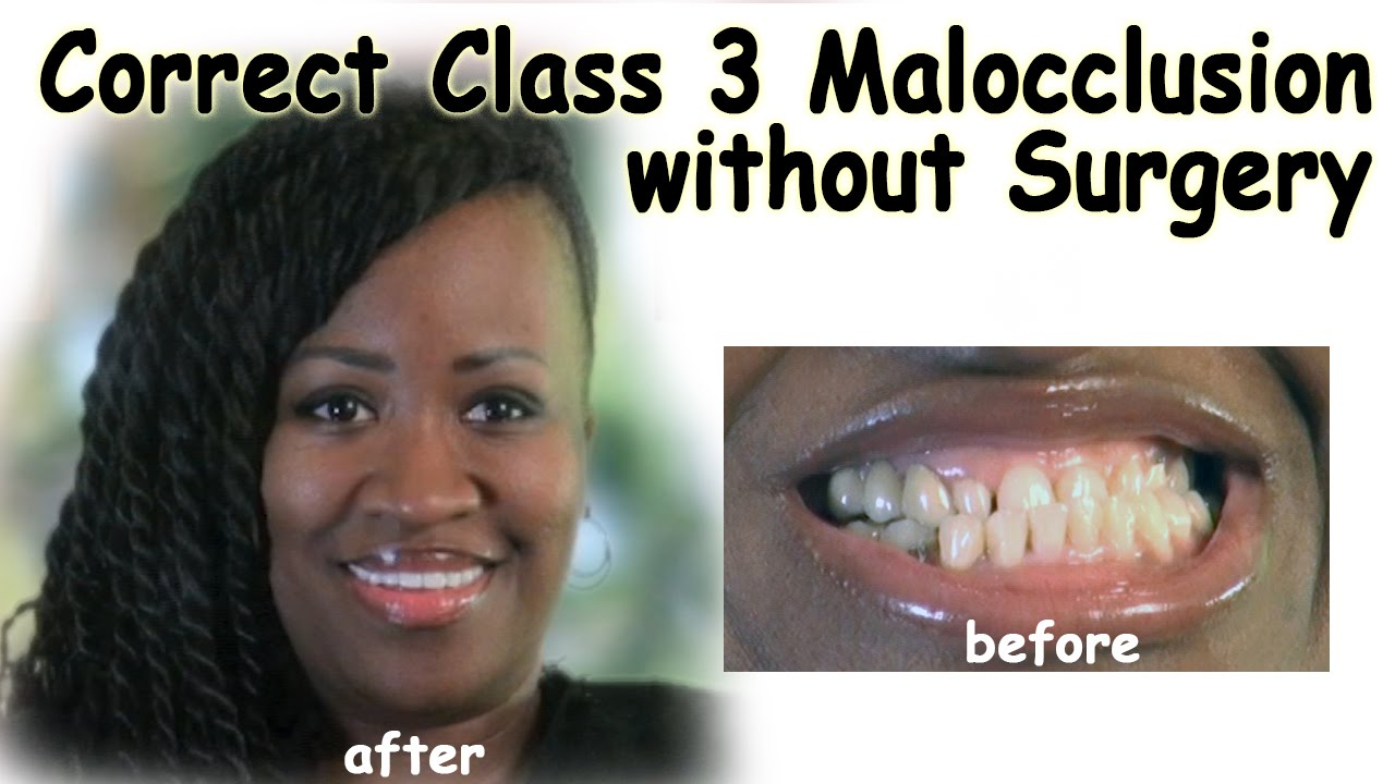 Correct Class 3 Malocclusion without Surgery - Bergen County NJ Dentist -  YouTube