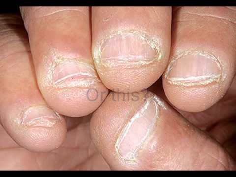 How to Stop Biting Nails - YouTube