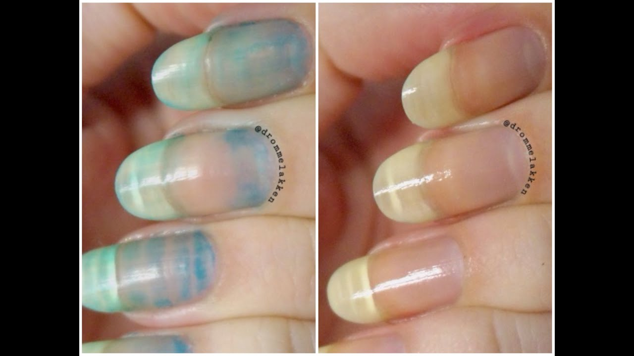 How To Remove Serious Nail Stains Youtube
