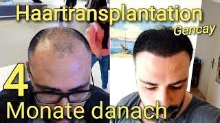 Monaten haartransplantation nach 4 ▷ Haarwachstum